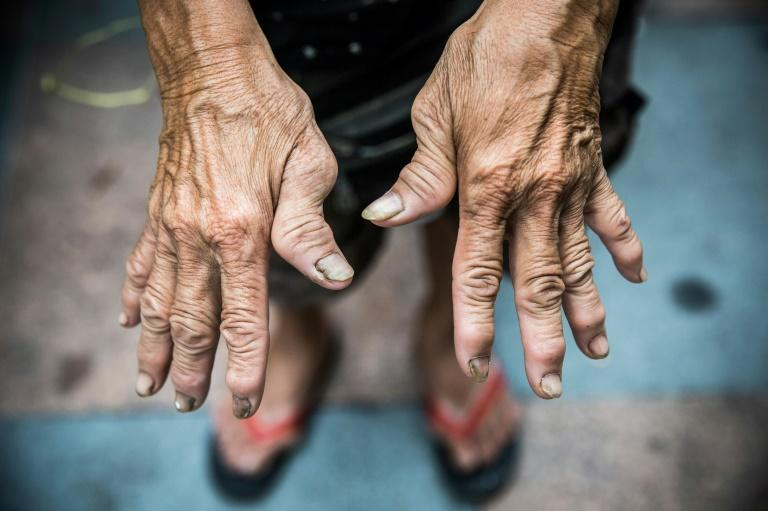 Au Fung-lan's hands are bent from 20 years of collecting cardboard on Hong Kong's streets