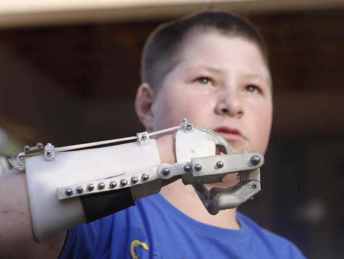 In this photo taken Friday, Aug. 23, 2013 Dylan Laas shows how his Robohand works during an interview with the Associated Press in Johannesburg. Laas who was born with Amniotic Band Syndrome, got his hand from carpenter, Richard van As who lost four fingers to a circular saw two years ago and started working on building the Robohand after seeing a video posted online of a mechanical hand made for a costume in a theater production. Since then van As has fitted Robohands on about 170 people, from toddlers to adults. (AP Photo/Denis Farrell)