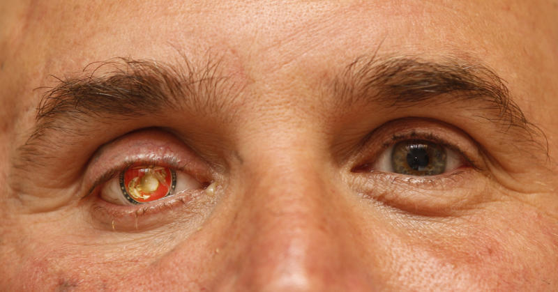 """In this Monday, Sept. 17, 2012 file photo, Nick Popaditch, a Republican congressional candidate in the California's 53rd District, poses for a photo showing his Marine Corps insignia in his right eye in La Mesa, Calif. Popaditch, who was injured in Iraq on April 7, 2004, when shrapnel tore through his sinuses and destroyed his right eye, says, """"...if the bad guys come back into control, that's not something I can control 8,000 miles away here. I'm just proud of the fact that when it came time to stand and fight for those things, those concepts of freedom, liberty, human rights ... I'm glad my nation did it."""" (AP Photo/Lenny Ignelzi)"""