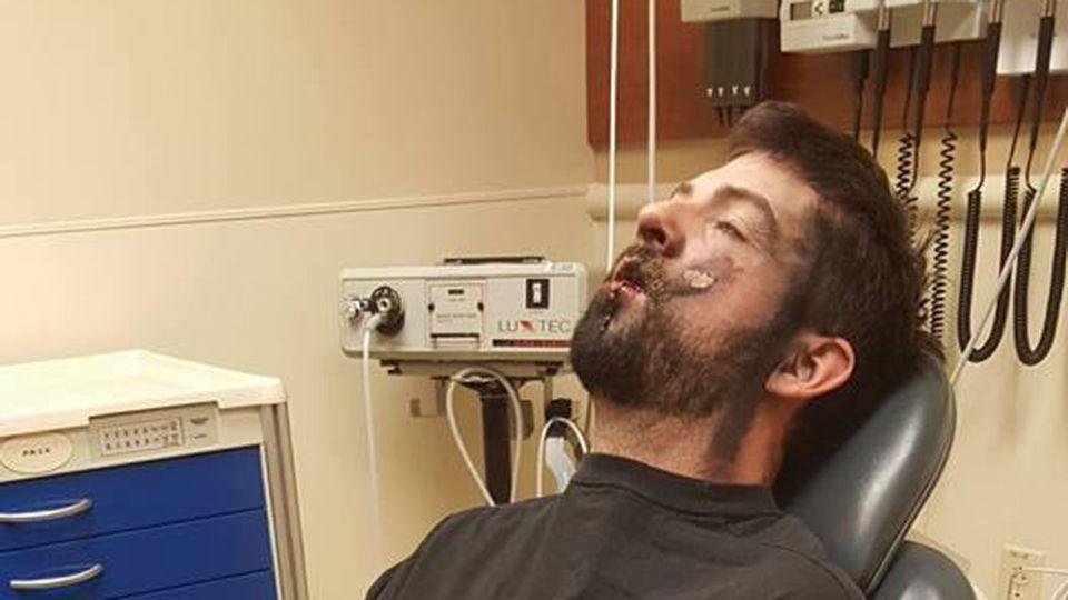 He was rushed to intensive care where various lodged objects were removed from his face. Source: Facebook