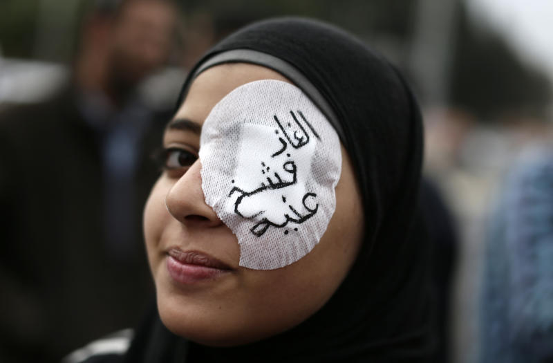 "FILE - In this Wednesday, Dec. 5, 2012 file photo, an Egyptian protester wears an eye patch during an anti Muslim Brotherhood demonstration outside the presidential palace, in Cairo, Egypt. The accusations against two Muslim Brotherhood officials that have been ordered to stand trial for allegedly kidnapping and torturing three men at the group's headquarters there, according to the city prosecutor's office, stem from November protests that swept much of the country, including Damanhour in the Nile Delta. The protests followed President Mohammed Morsi's decrees, which have since been rescinded, giving himself near absolute powers. Arabic on the eye patch reads, ""tear gas damaged my eye."" (AP Photo/Hassan Ammar, File)"