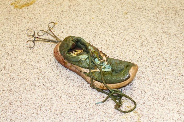 After previous unsuccessful attempts, Anuket, a gator, finally had the shoe removed, that was lodged in her stomach, at the University of Florida College of Veterinary Medicine on Feb. 5, 2021. (University of Florida College of Veterinary Medicine)