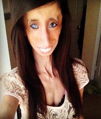 """<div class=""""caption-credit""""> Photo by: Lizzie Velasquez</div>Having no body fat or muscle tissue makes Lizzie Velasquez prone to injuries that most people would never think about -- like stress fractures in her feet from walking or standing, since the bottoms of her feet have no padding. (She's in a cast right now. """"I fracture my foot if I'm not wearing the supportive shoes I'm supposed to wear,"""" she confessed to Yahoo! Shine. """"I'm usually wearing the cute shoes that match my outfit."""") But it's made her think about New Years' resolutions, and how people are often focused on improving their outward appearances. """"Instead of making it a goal to lose weight or to grow your hair longer, whatever it is to make yourself physically better, people should look toward making not only their character better, but helping others,"""" she suggests. (Read her story: <a href=""""http://shine.yahoo.com/beauty/lessons-worlds-ugliest-woman-stop-staring-start-learning-184400606.html"""" data-ylk=""""slk:Lessons from &quot;The World's Ugliest Woman&quot;: Stop Staring and Start Learning.);outcm:mb_qualified_link;_E:mb_qualified_link;ct:story;"""" class=""""link rapid-noclick-resp yahoo-link"""">Lessons from """"The World's Ugliest Woman"""": Stop Staring and Start Learning.) <br></a>"""