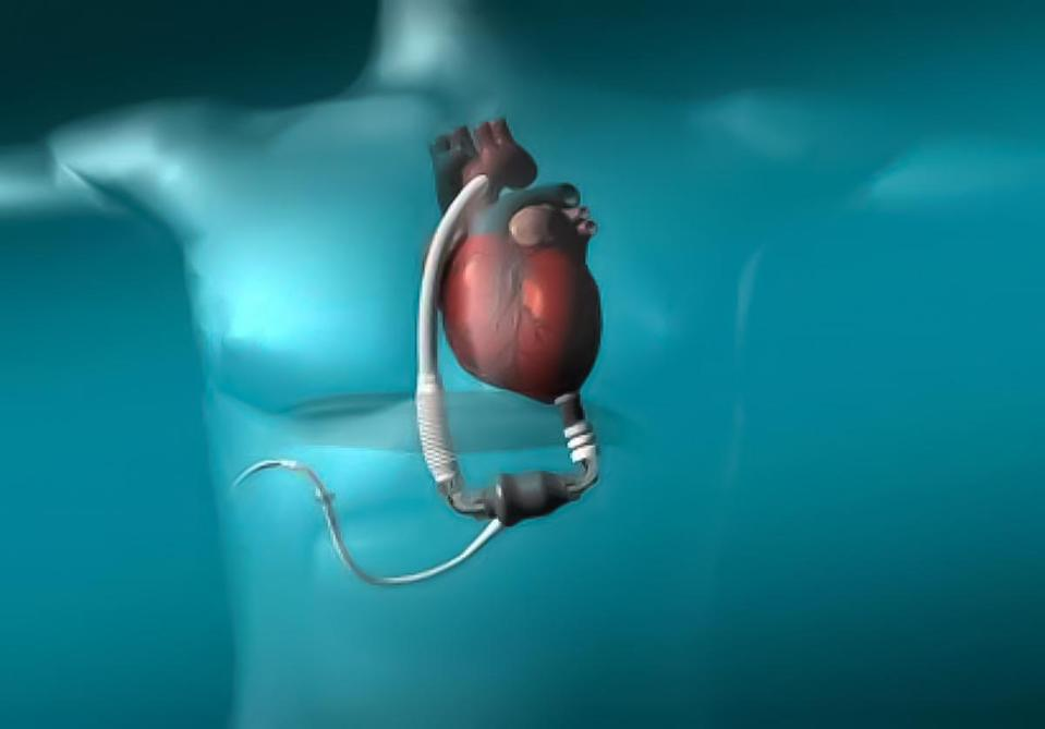 Ventricular Assist Device