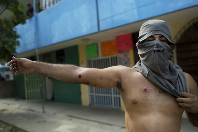 <p>A demonstrator shows injuries caused by rubber bullets fired by the police during anti-government protest in Valencia, Venezuela, on Feb. 26, 2014. The protests began with students and were soon joined by others in several cities, upset over crime, economic problems and heavy-handed government response to the protests. (Photo: Rodrigo Abd/AP) </p>