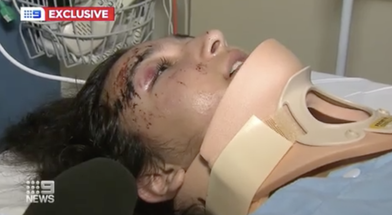 Aysenour Koca, 14, is pictured in a hospital bed with a neck cast on.