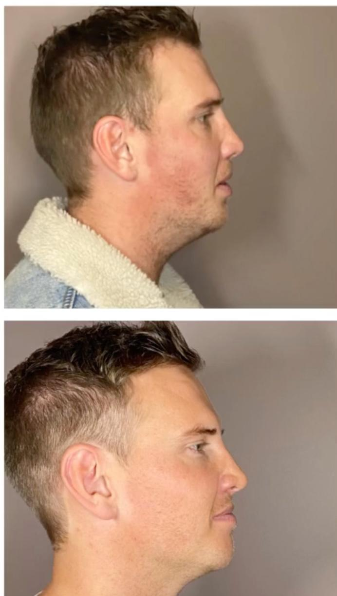 Liam Cooper cosmetic procedure results from the side