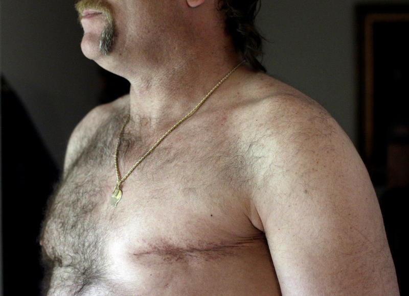 """In this May 3, 2012 photo, a surgery scar is seen on breast cancer survivor Robert Kaitz's left breast in his home in Severna Park, Md. Kaitz thought a small growth under his left nipple was just a harmless cyst. By the time he had it checked out in 2006, almost two years later, the lump had started to hurt. The diagnosis was a shock. """"I had no idea in the world that men could even get breast cancer,"""" Kaitz said. Now Kaitz does frequent self-exams and has mammograms every year. The American Cancer Society estimates 1 in 1,000 men will get breast cancer, versus 1 in 8 women. (AP Photo/Patrick Semansky)"""