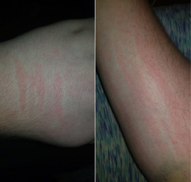 16 Photos That Show What Dermatographism Looks Like