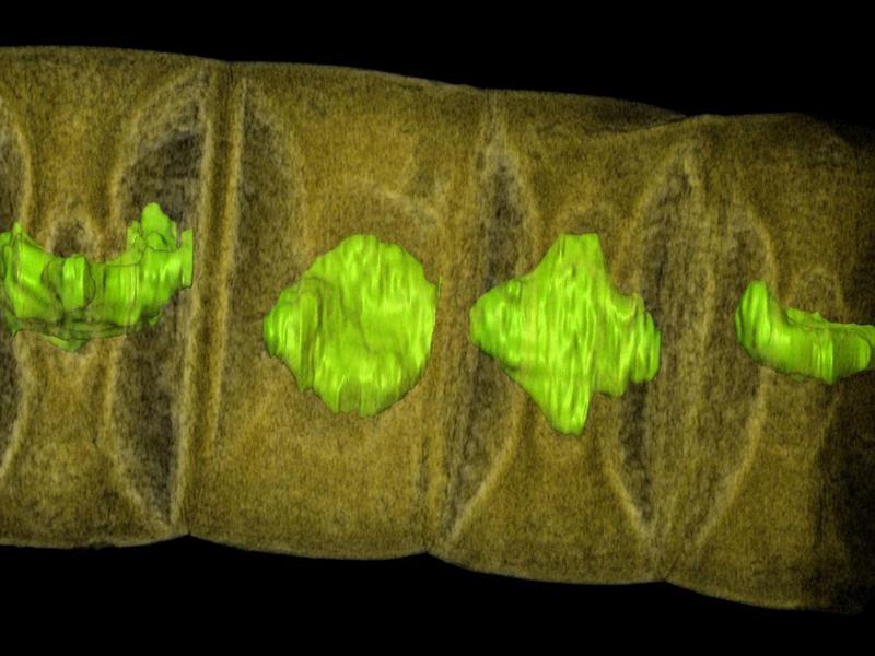 An X-ray image of fossilised red algae, highlighted in green: Stefan Bengtson