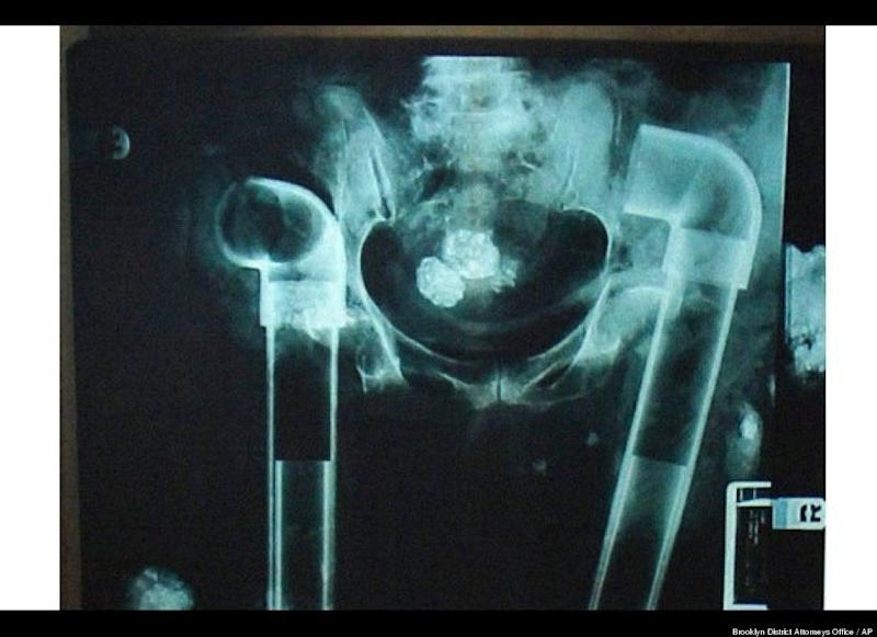 A film released in February 2006 shows PVC plumbing pipes put into a deceased person as part of an alleged body parts ring. Several people were charged in the case.
