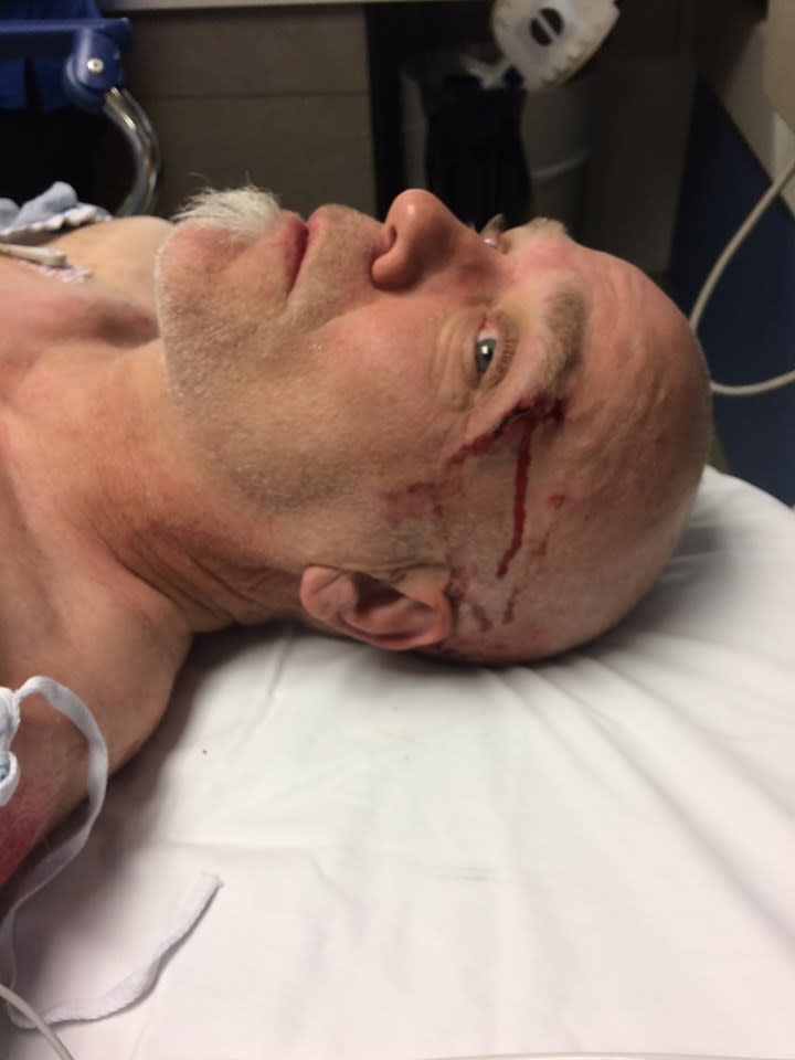 Bob Burdett in hospital after falling his mountain bike. A bleeding wound is seen above his eyebrow.