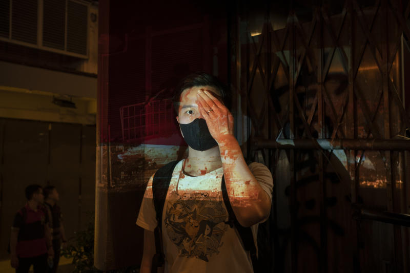 "A protester who identified himself as Tom, poses for a portrait next to a damaged subway station as a projector displays a photograph, previously taken during the unrest, over him at a protest in Hong Kong. Tom said ""If we don't wear the mask, the police can recognize you and say you are a rioter and arrest you for no reason, even if you are peacefully protesting. That's the white terror they want to do."" (Photo: Felipe Dana/AP)"