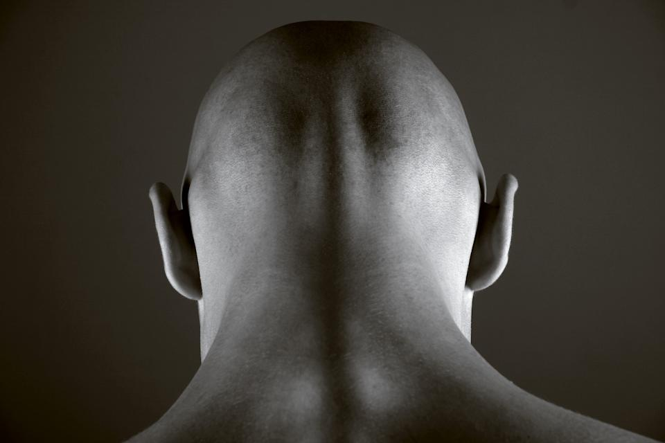 Scientists say they are close to discovering a cure for baldness [Photo: Getty]
