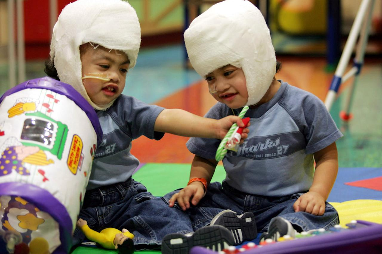 FILE. In this Dec. 8, 2004 file photo provided by Children's Hospital at Montefiore in New York, brothers Clarence, left, and Carl Aguirre, sit upright unassisted to play. When they were born joined at the head, their mother remembers doctors in the Philippines telling her that she would have to choose which one would live and which would die. But ten years ago doctors at Montefiore Medical Center in the Bronx were able to save both boys in an operation. (AP Photo/Montefiore Medical Center, File)