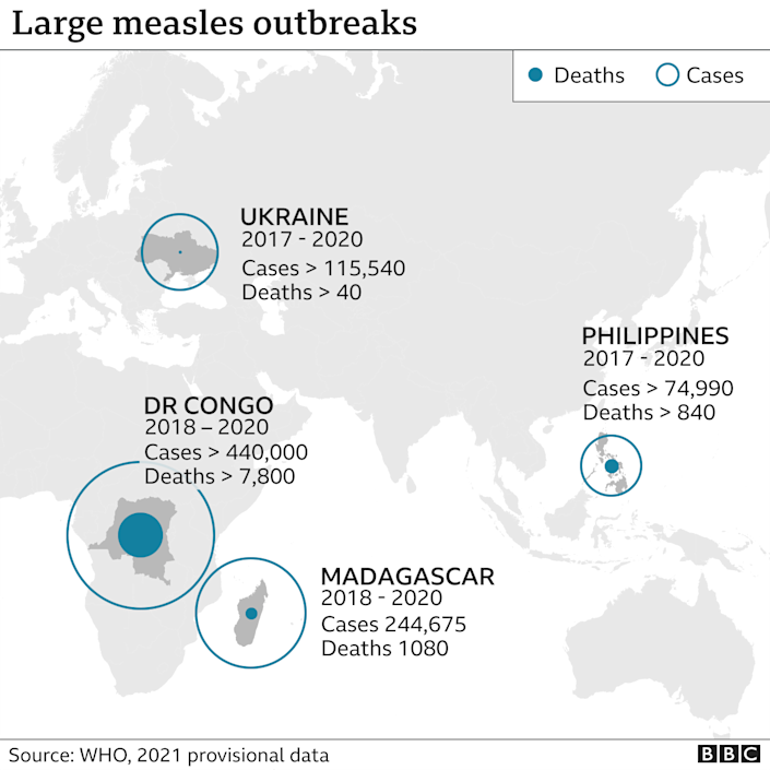 A map of countries with recent measles outbreaks