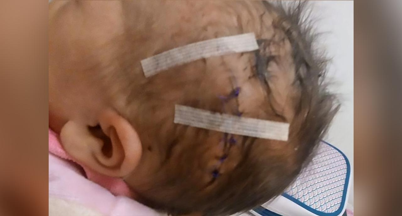 Newborn's Head Sliced by Scalpel During C-section: C-section Injuries