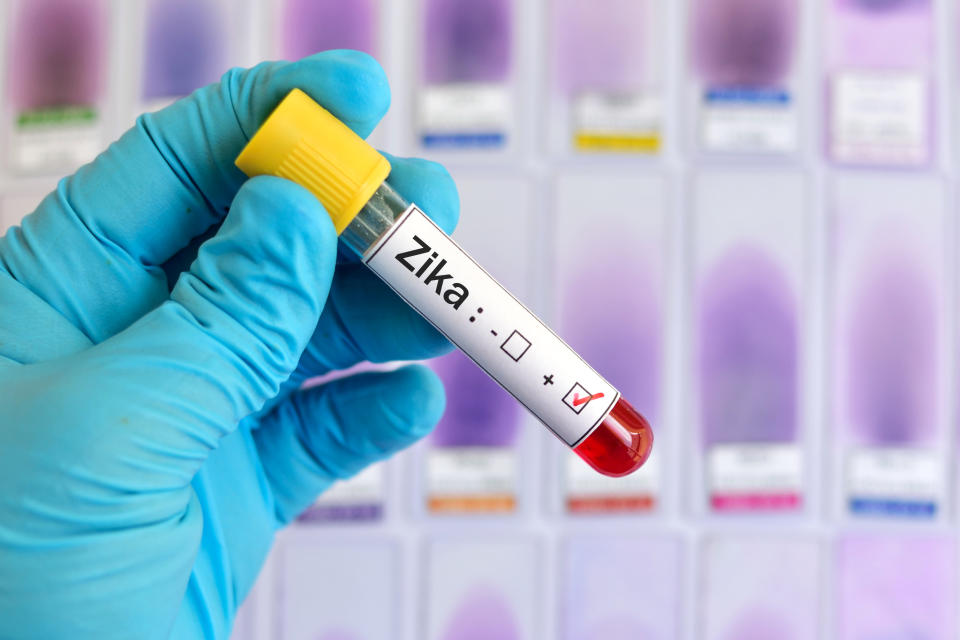 Blood sample positive with Zika virus