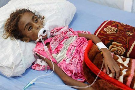 Malnourished girl Jamila Ali Abdu lies on a hospital bed before she died in the Red Sea port city of Hodeidah