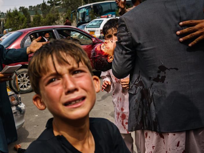 A man carries a bloodied child, as a woman lays wounded on the street in Kabul, Afghanistan.