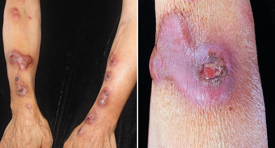 A 63-year-old woman with lesions across her arms as a result of a bacterial infection.
