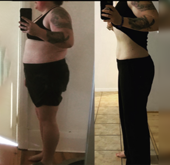 Tamara shows weight loss improvement to Polycystic Ovary Syndrome