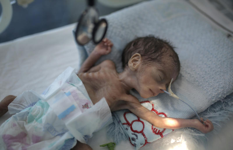 "FILE - In this Nov. 23, 2019 file photo, a malnourished newborn baby lies in an incubator at Al-Sabeen hospital in Sanaa, Yemen. The U.N. children's agency says that millions of Yemeni children could be pushed to ""the brink of starvation"" as the coronavirus pandemic sweeps across the war-torn Arab country amid a huge drop in humanitarian aid funding. UNICEF on Friday, June 26, 2020 released a new report, ""Yemen five years on: Children, conflict and COVID-19."" (AP Photo/Hani Mohammed, File)"