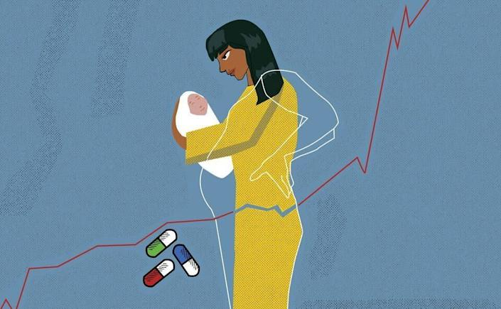 Many women experiencepain during pregnancy. (Photo: ILLUSTRATION BY SAMIA SINGH)