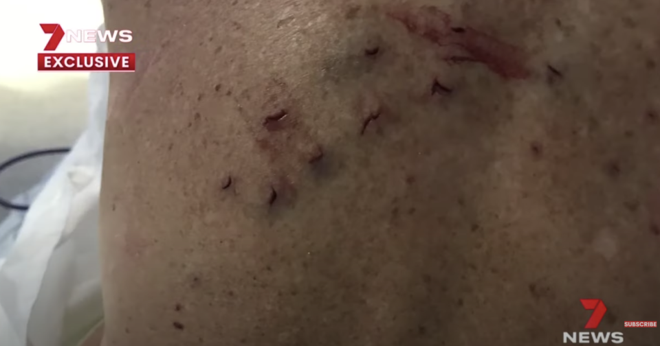 A bite mark from a shark is seen on Michele Bootes, 63.