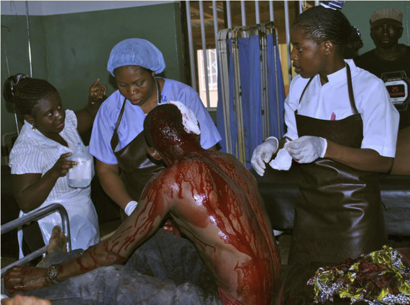 A victim of a blast receives treatment at St Gerard hospital in Kaduna, Nigeria, Sunday, June 17, 2012. Three church blasts rocked a northern Nigerian state Sunday, officials said, prompting protest in a state that has previously been strained by religious tensions. The first two blasts hit churches in the state city of Zaria, said a Kaduna state police spokesman .(AP Photo/Tony Collins)