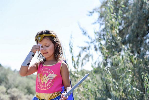 PHOTO: Aliyah Arambul's photo shoot celebrating her eye injury recovery was styled by her mom, Jessie Arambul, of Pasco, Washington. (Jessie Arambul Photography)