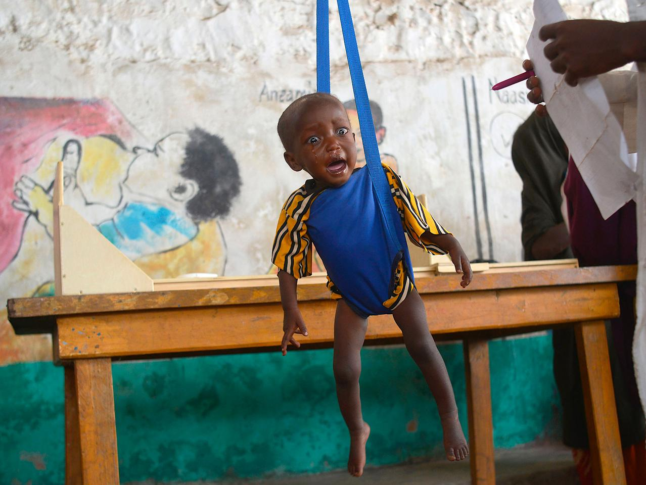 <p>MAR. 15, 2017 – A malnourished child is processed by an aid worker for a UNICEF- funded health programme catering to children displaced by drought, at a facility in Baidoa town, the capital of Bay region of south-western Somalia where the spread of cholera has claimed tens of lives of IDP's compounding the impact of drought.<br /> The United Nations is warning of an unprecedented global crisis with famine already gripping parts of South Sudan and looming over Nigeria, Yemen and Somalia, threatening the lives of 20 million people. For Somalis, the memory of the 2011 famine which left a quarter of a million people dead is still fresh. (Photo: Tony KarumbaAFP/Getty Images) </p>