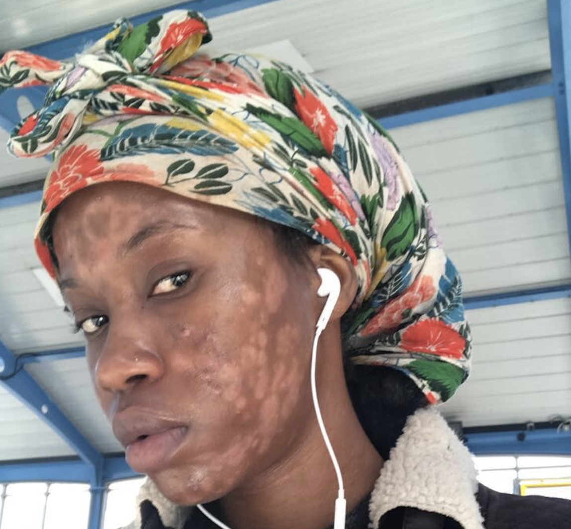 Michelle Mandere has psoriasis all over her body, including her face.
