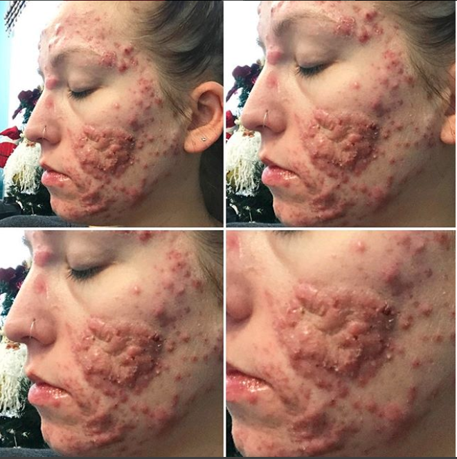Her acne has been getting worse and shattering her confidence. Photo: Instagram/stephmkt1d