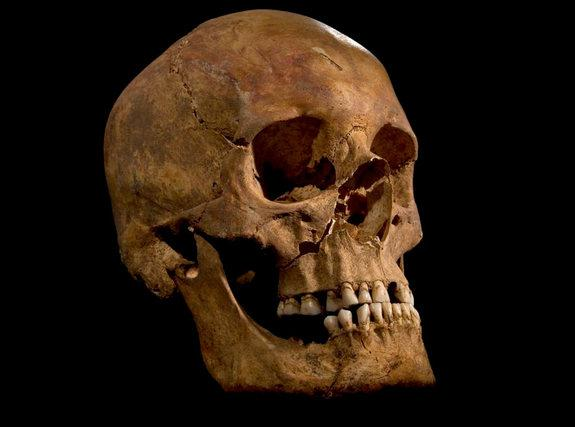 The skull of the skeleton found at the Grey Friars excavation in Leicester, potentially that of King Richard III.