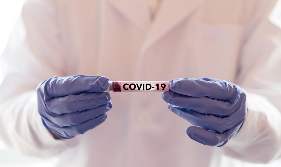 COVID-19 named by WHO for Novel coronavirus NCP concept. Doctor or lab technician holding blood sample with novel (new) coronavirus N.C.P. in Wuhan, Hubei Province, China, medical and healthcare