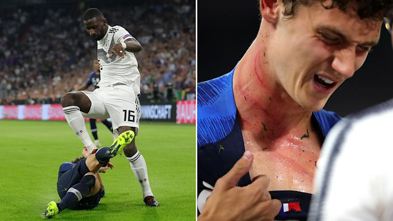 Benjamin Pavard Suffers Brutal Injury Marks On His Neck From Antonio Rudiger