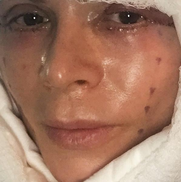 The reality star debuted her new cosmetic surgery on Andy Cohen's talk show