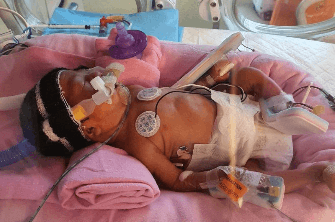 nursing care for premature baby