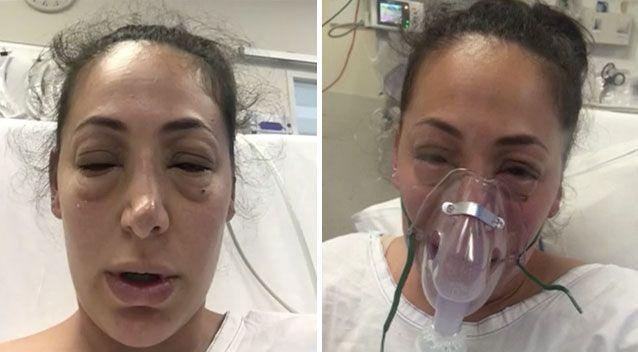 Almost immediately, anaphylactic symptoms developed after a Melbourne woman ate yoghurt bought from a shopping centre juice bar. Pictures: Supplied