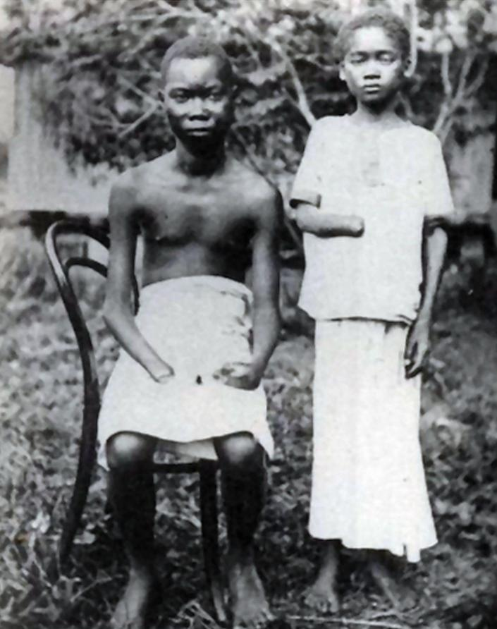 Amputation was frequently used to punish workers in the Congo Free State - Universal History Archive /Universal Images Group Editorial