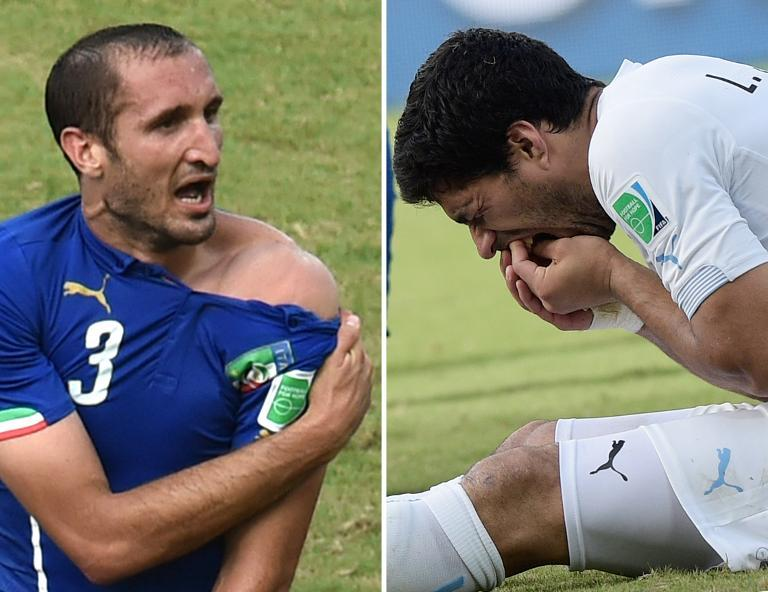 Italy's Giorgio Chiellini (L) reveals an apparent bitemark, and Uruguay's Luis Suarez (R) holding his teeth after the incident during their World Cup match in Natal on June 24, 2014