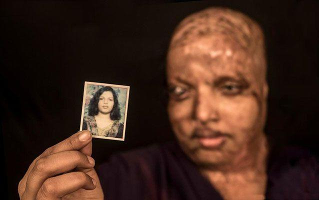 Rani was left horribly disfigured. She holds a picture of what she used to look like before the attack. Picture: Caters