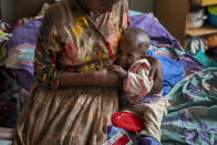 Tekien Tadese, 25, holds her baby, Amanuel Mulu, 22 months old, who is suffering from malnutrition and weighs only 6.7 kilograms (14 pounds and 12 ounces), at the Ayder Referral Hospital in Mekele, in the Tigray region of northern Ethiopia, on Monday, May 10, 2021. The child was unconscious when he was first admitted in April, severely malnourished and anemic after losing half his body weight. Two weeks in intensive care saved his life. (AP Photo/Ben Curtis)