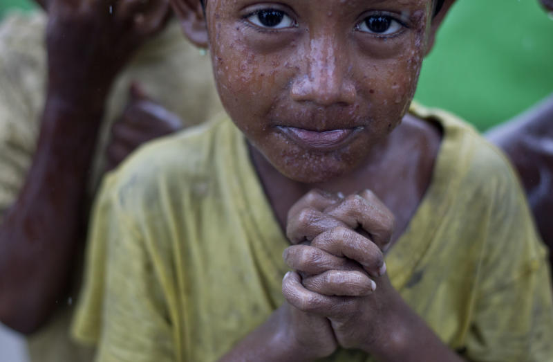 In this May 14, 2013 photo, a Rohingya boy suffering from a skin infection shivers in rain, outskirts of Sittwe, western Rakhine State, Myanmar. Thousands of Rohingya trapped in squalid, dusty camps in western Myanmar have nowhere to turn. First the government, then extremist Buddhist mobs, had forced hundreds of foreign aid workers out of Rakhine state, leaving people with little access to life-saving medical care, food or even clean water. (AP Photo/Gemunu Amarasinghe)