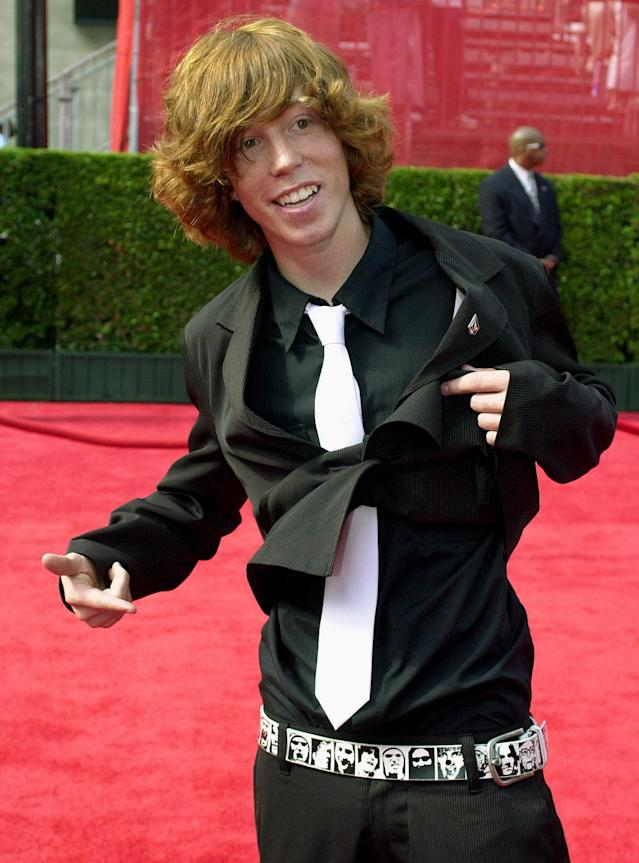 <p>Snowboarder Shaun White shows off his belt as he arrives at the 11th annual ESPY Awards, Wednesday, July 16, 2003, in Los Angeles. The ESPY Awards honor the year's top performances and sports moments. White is nominated for best action sports athlete. (AP Photo/Jerome T. Nakagawa) </p>