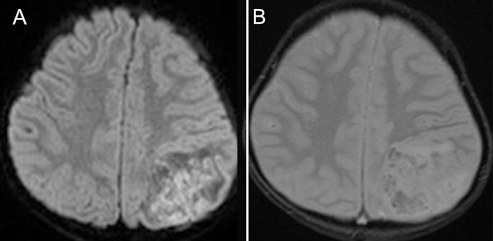 An MRI of a four-year-old boy's brain is seen.