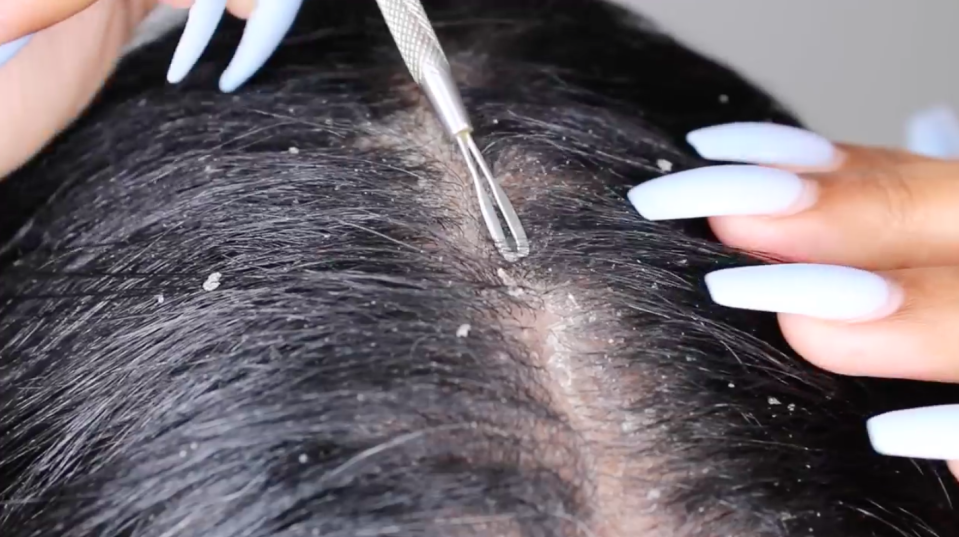 Dandruff scraping is the new pimple popping [Photo: YouTube]