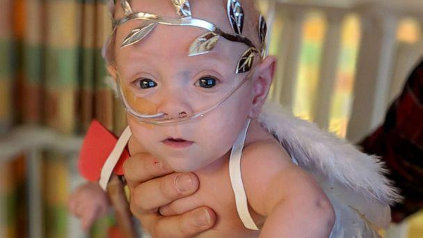 PHOTO: Eight-month-old Connor Florio of Danbury, Connecticut, a former 26-week micro preemie born less than 11 ounces in New York. (Jamie and John Florio)