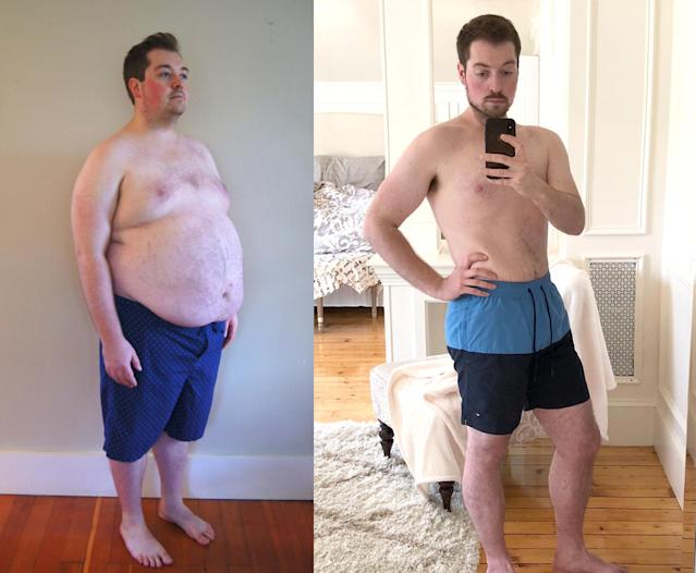 """Since losing almost all of my excessive weight, I feel fantastic."" (Photos: Courtesy of Dr. Kevin Gendreau)"